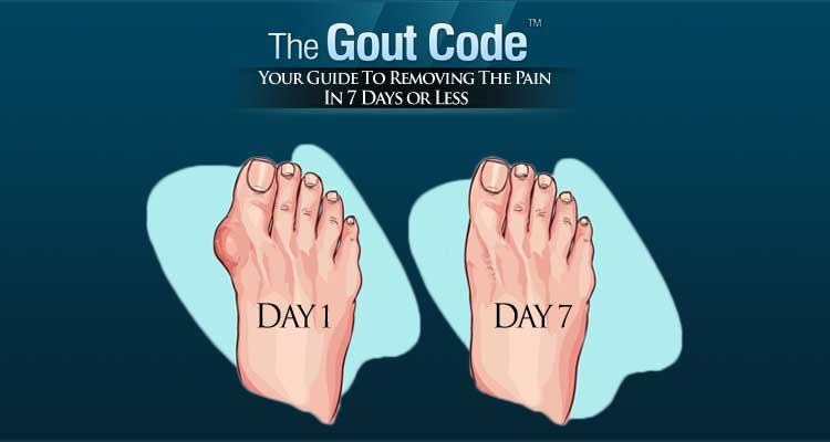 AAFP Endorses ACP Guideline on Managing Acute, Recurrent Gout
