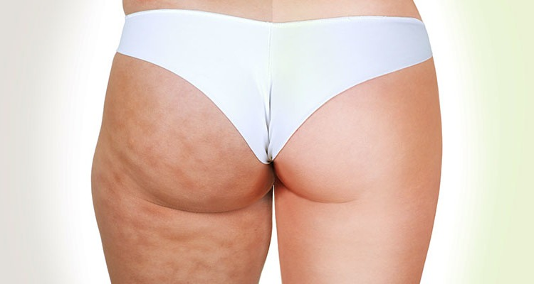 truth about cellulite featured image
